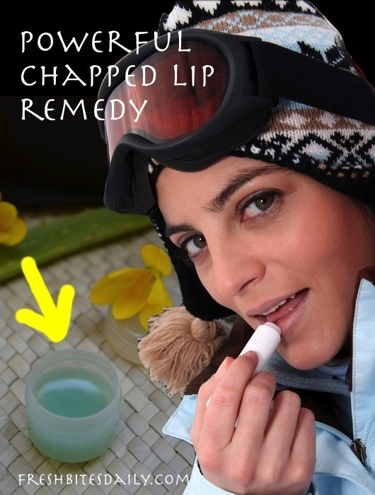 Homemade lip balm, a chapped lips remedy