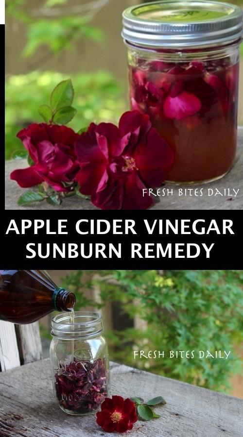 Apple Cider Vinegar For Sunburns With A Surprise Inside!
